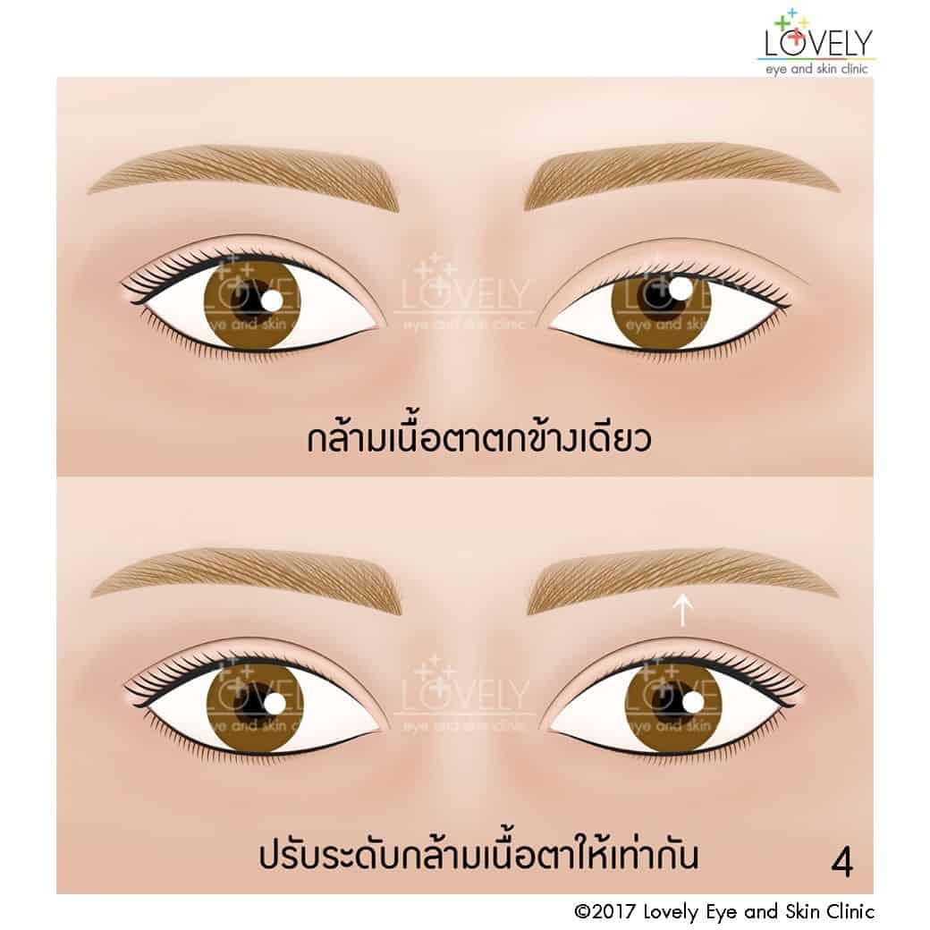 กล้ามเนื้อตาตกข้างเดียว ใช้วิธีปรับระดับกล้ามเนื้อตาให้เท่ากัน4_5.jpg