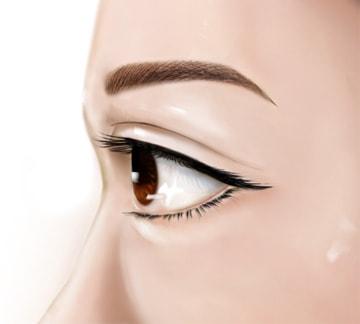 การทำตาสองชั้นแบบกรีดเอาหนังตาส่วนเกินออก ในเคสที่มีหนังตาเกิน.jpg