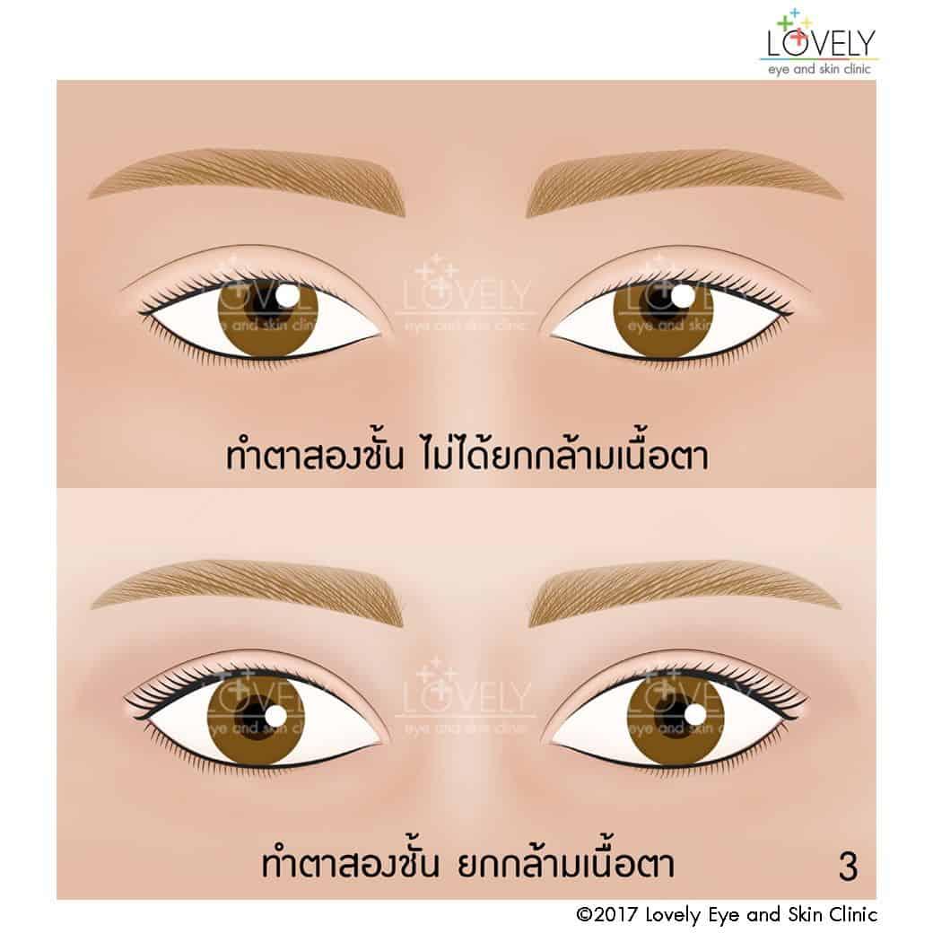 ทำตาสองชั้น ไม่ได้ยกกล้ามเนื้อตา ใช้วิธีทำตาสองชั้น ยกกล้ามเนื้อตา3_4.jpg