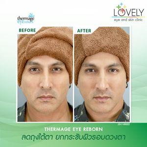 ลดรอยย่นและรักษาอาการหนังตาตก เพิ่มเสน่ห์ให้ดวงตาดูกลมโต สดใสขึ้น 4355_1.jpg