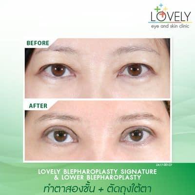 เคสตัวอย่างการทำตาสองชั้นพร้อมผ่าตัดถุงใต้ตา ก่อนผ่าตัด หนังตาตกลง มีถุงใต้ตา.jpg