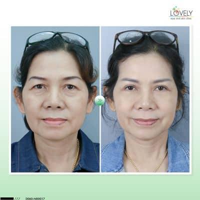 เคสตัวอย่างการผ่าตัดถุงใต้ตา ก่อนผ่าตัด เห็นร่องน้ำตาชัดเจน เป็นสองเส้น.jpg