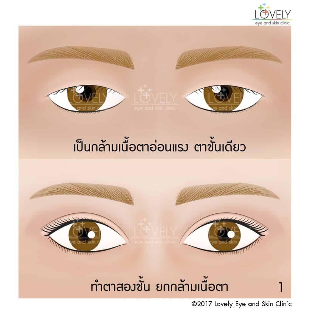 เป็นกล้ามเนื้อตาอ่อนแรง ตาชั้นเดียว ใช้วิธีทำตาสองชั้น ยกกล้ามเนื้อตา1_6.jpg