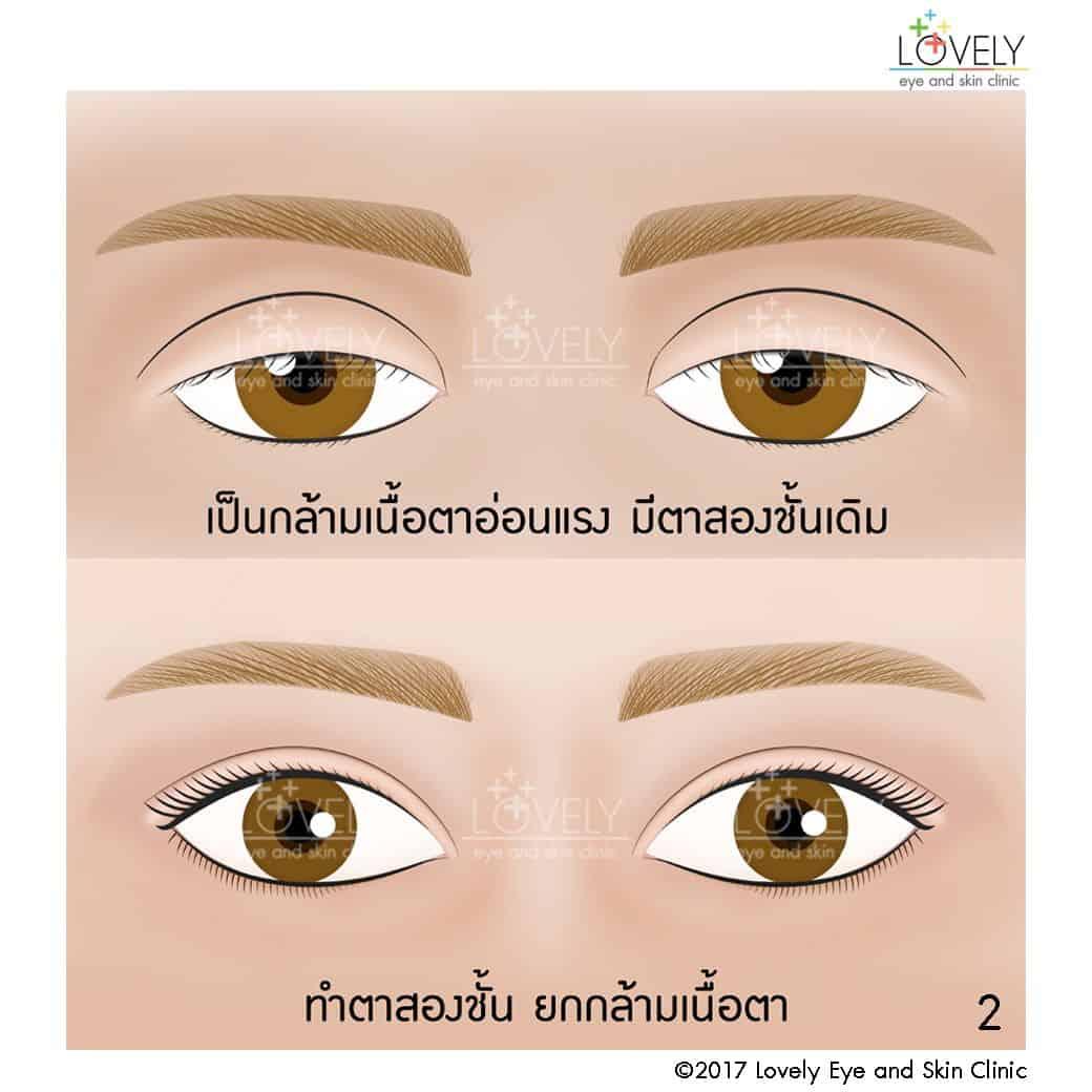 เป็นกล้ามเนื้อตาอ่อนแรง มีตาสองชั้นเดิม ใช้วิธีทำตาสองชั้น ยกกล้ามเนื้อตา2_7.jpg