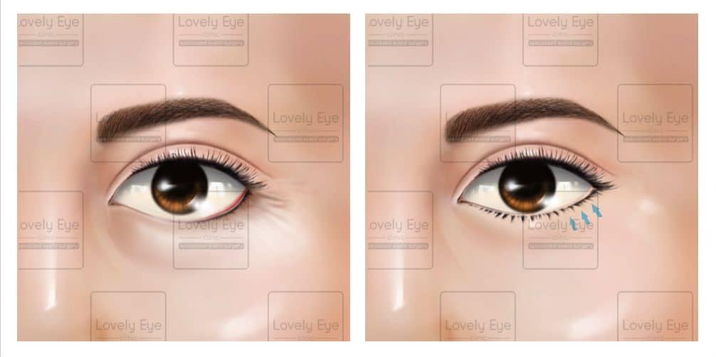 เย็บตาล่างขึน_0.jpg