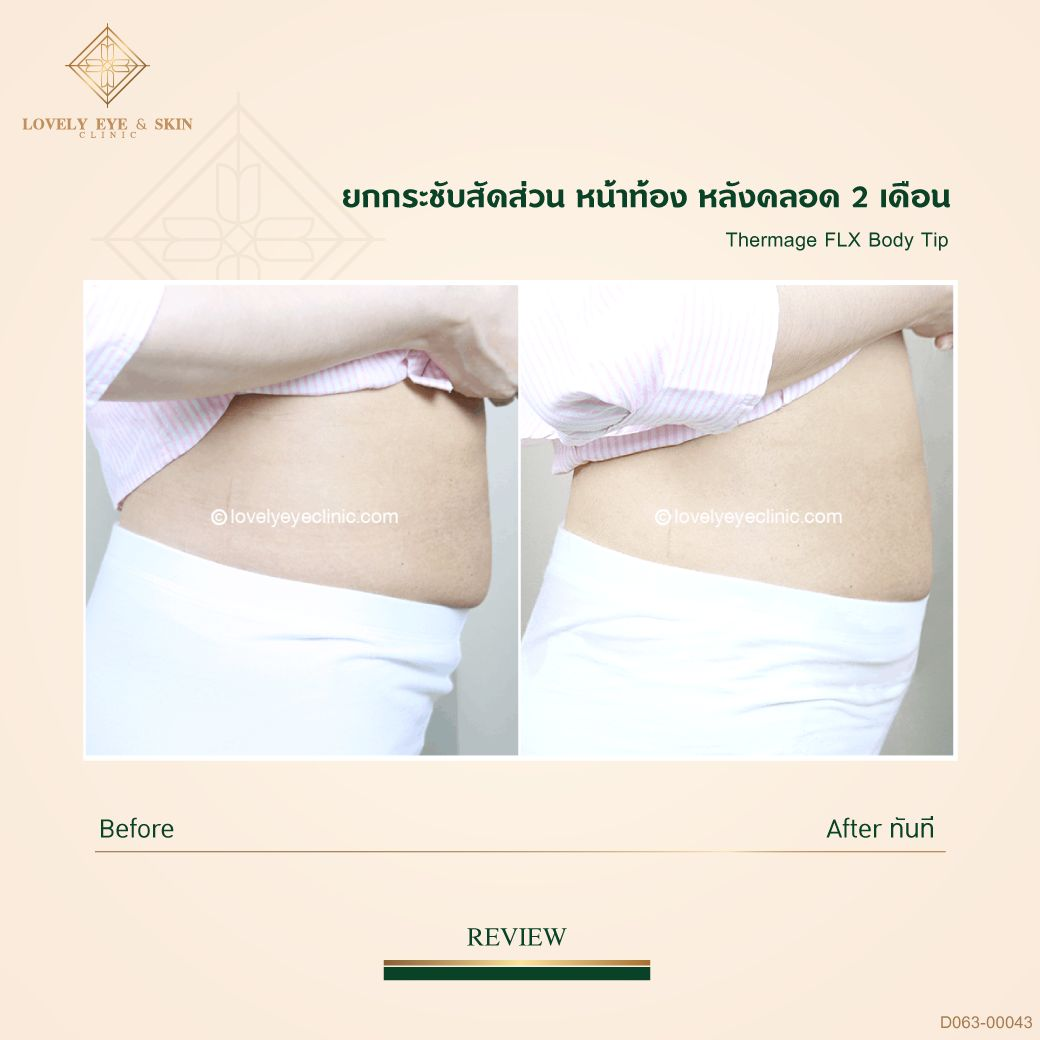 013-Thermage-FLX-Body_D063_00043หลังคลอด01.jpg