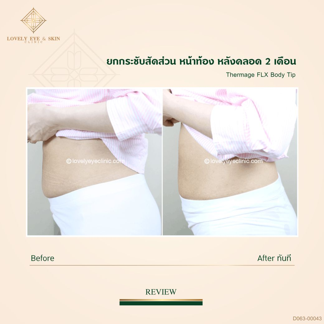 013-Thermage-FLX-Body_D063_00043หลังคลอด02.jpg