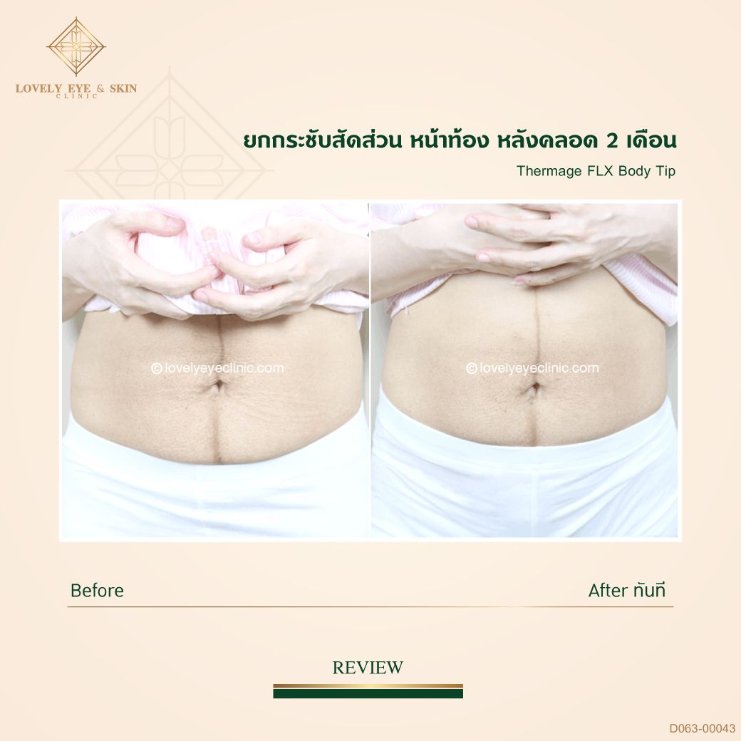 013-Thermage-FLX-Body_D063_00043หลังคลอด03.jpg