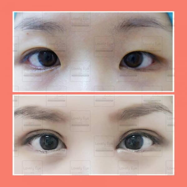 The misunderstanding about incisional double eyelid surgery | ทำตา