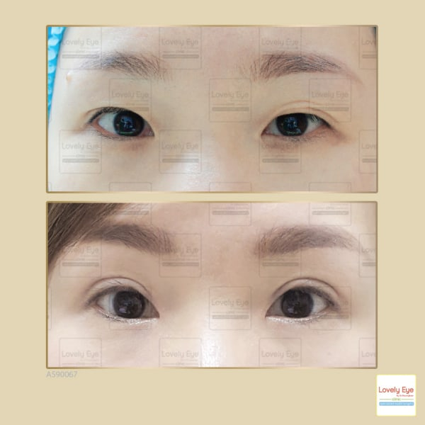 The misunderstanding about incisional double eyelid surgery