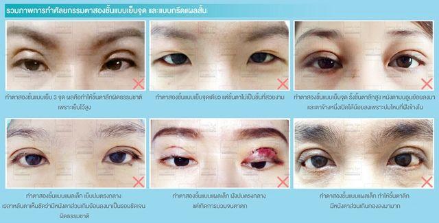 2_5 ภาพรวมการศัลยกรรมตาสองชั้นแบบเย็บจุด หรือกรีดแผลเล็ก.jpg