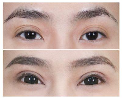 3. กล้ามเนื้อตาอ่อนแรง ตาปรือ ตาง่วง_2.jpg