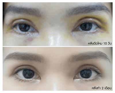 4 อาการช้ำรอบดวงตา_0_0.png