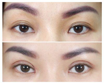 5. ชั้นตาเก่าที่อยู่ต่ำกว่าชั้นตาใหม่มากเกินไป_1.jpg