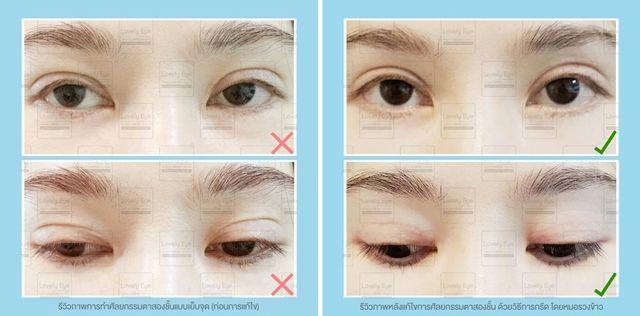 5_2 รีวิวการศัลยกรรมตาสองชั้นแบบเย็บจุด.jpg