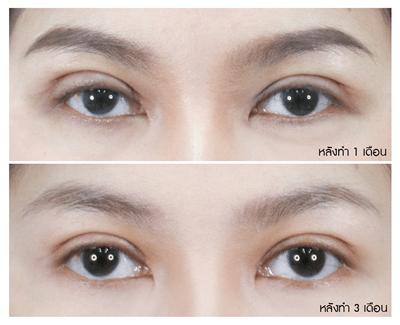 6 การยุบบวมของตาทั้งสองข้างไม่เท่ากัน_0_0.png