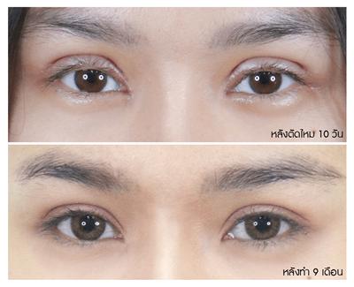 8 ขนตางอนและแนวขอบตาที่ดูชัด _0_0.png