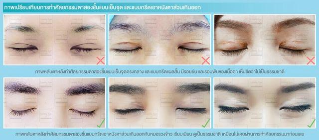 8_3 การทำตาสองชั้นแบบเย็บจุด หรือตัดหนังตาส่วนเกินออก.jpg