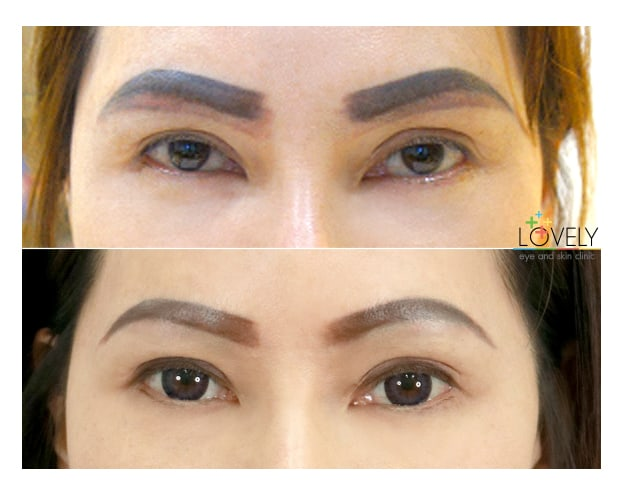 BeforeAfterbrow and eye tattoo  erase.jpg