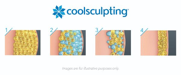 Illustration-how-coolsculpting-works-horizontal-Medium_0.jpg