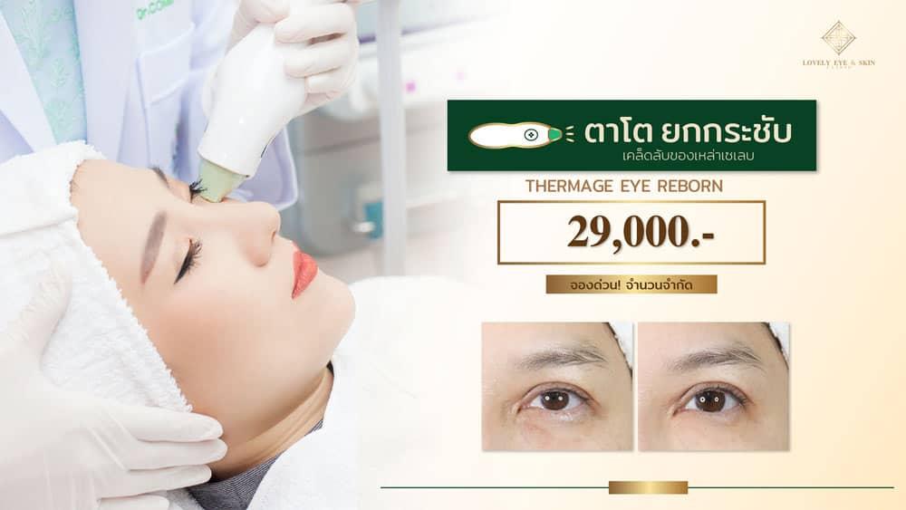 Thermage-Eye-Reborn-225-shot-29000-WS-ไม่เกิน-100-kb.jpg
