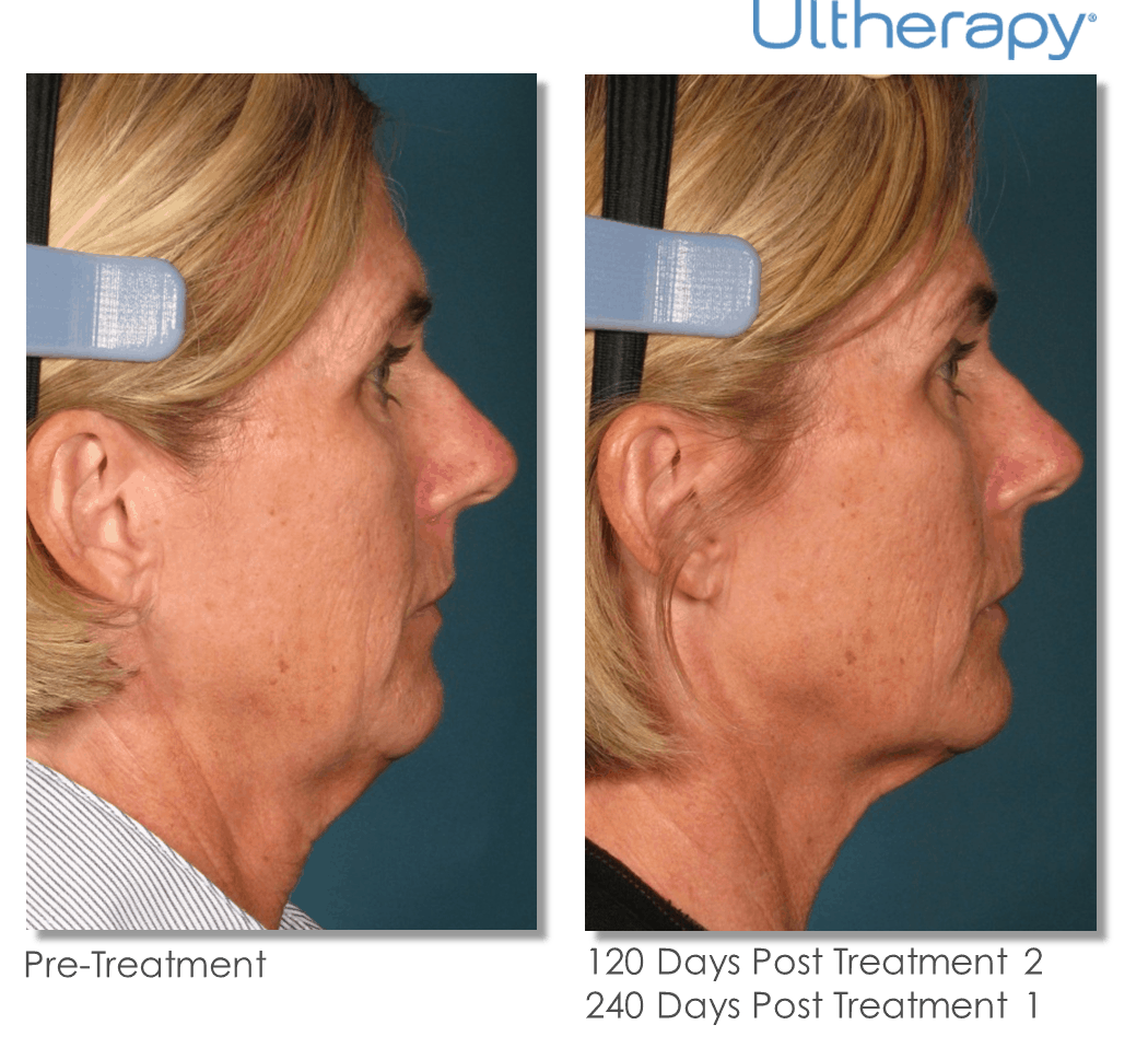 Ultherapy-000L-005Y_0Day-120Day-2TX_BEFORE&AFTER_Full.png