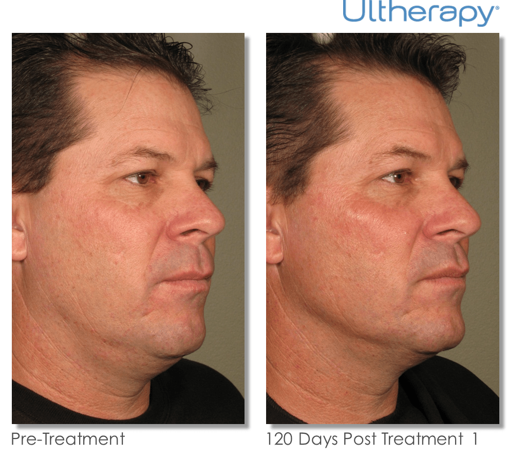 Ultherapy-0058D_0Day-120Day-1TX_BEFORE&AFTER_Full_0.png