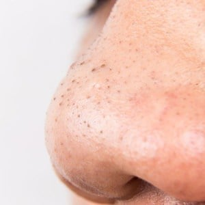 what-is-a-blackhead.jpg