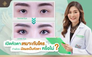 เปิดหัวตา ทำร่วมกับทำตาสองชั้น เพื่อให้ชั้นตาเรียวยาว ตาดูหวาน ตาโตขึ้น